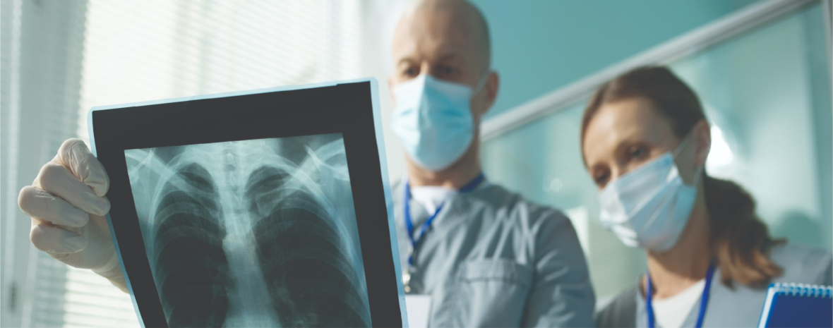 What is Pneumoconiosis? Protection, Prevention, and More